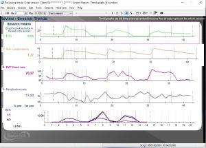 bfb-stress-profile-pavyzdys-matosi-raumenu-itampa